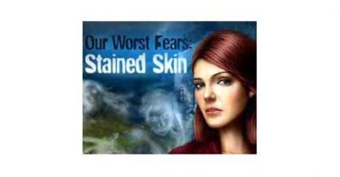 Stained-Skin-Game-Icon